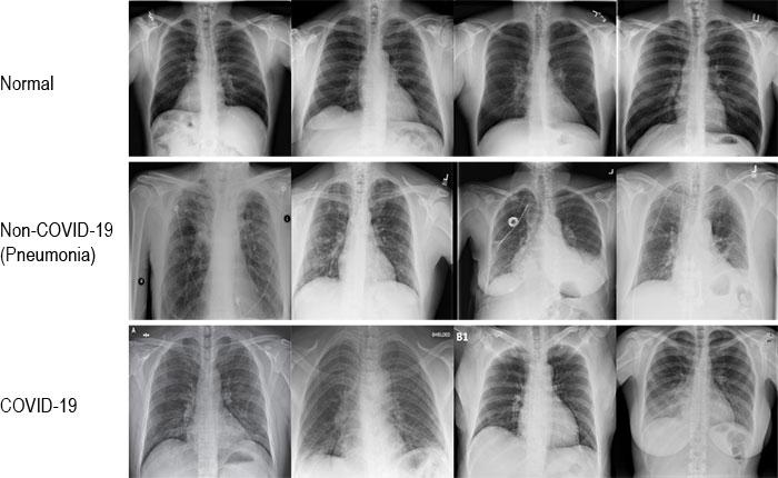 Immagini di radiografie COVID-19 (1)
