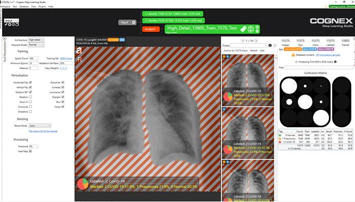 Images tomodensitométriques de poumons dans l'environnement du logiciel VisionPro Deep Learning