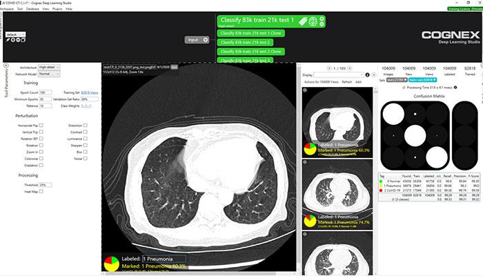 CT-Aufnahmen von Lungen in der VisionPro Deep-Learning-Software-Umgebung