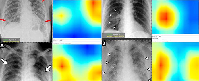 Mapas térmicos de escaneos pulmonares