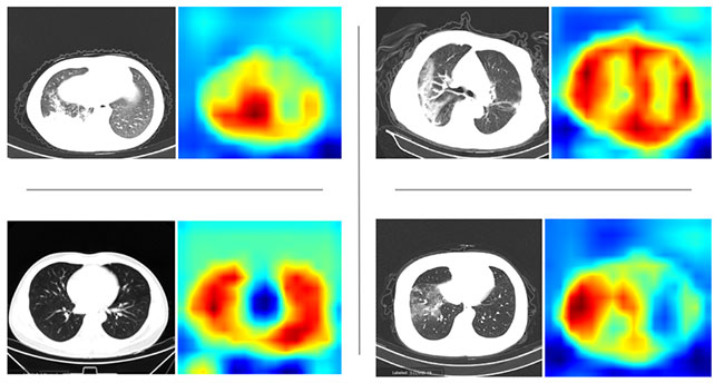 Heat maps of lung scans
