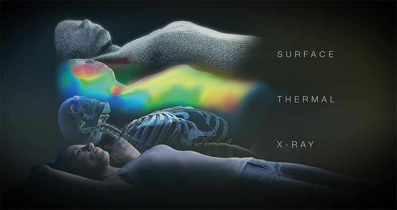 Surface, thermal and x-ray imaging of patient's body