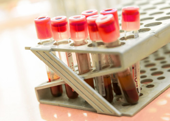 blood sample vials in tray for quality management inspection