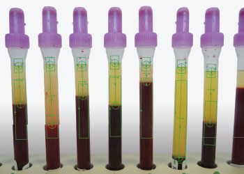 Cognex Liquid Level Measurement for Medical Vials