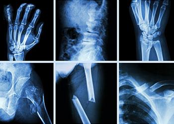 Medical imaging of various broken bone xrays