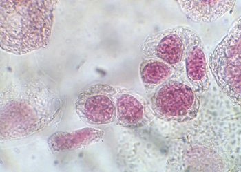 Cognex Microscopy