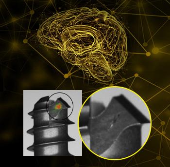 Deep Learning brain screw defect detection hot spot